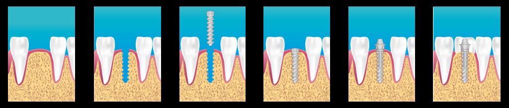 Procedura de implantare
